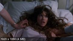 Резня в больнице / Hospital Massacre / Be My Valentine, or Else... / Ward 13 / X-Ray (1981-1982) BDRemux